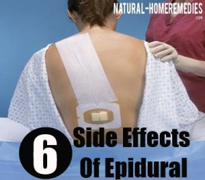 Epidurals and Side Effects